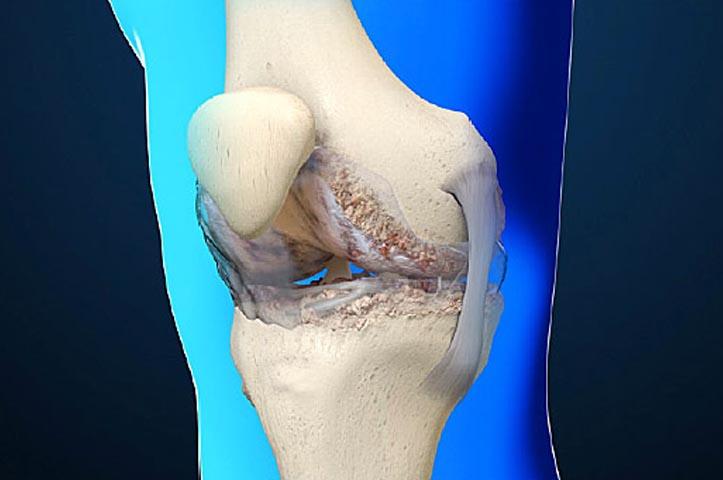 nyeri osteoartritis