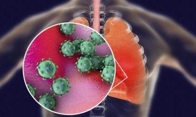 dampak paru infeksi COVID-19